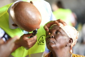 Siaya residents benefit from free eye treatment